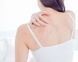 ヒト由来幹細胞上清液を用いたアトピー性皮膚炎治療