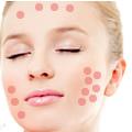 ニキビ・赤ら顔治療